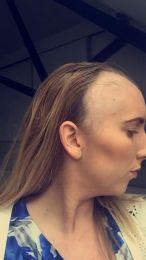 bald 3